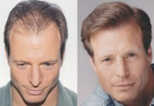 हेयर रिप्लेसमेंट सिस्टम - Hair Replacement System