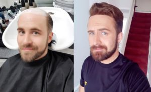 hair replacement customer