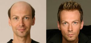 hair replacement procedure