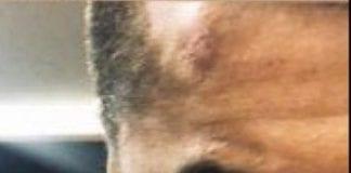 शूटिंग के दौरान अर्जुन कपूर घायल